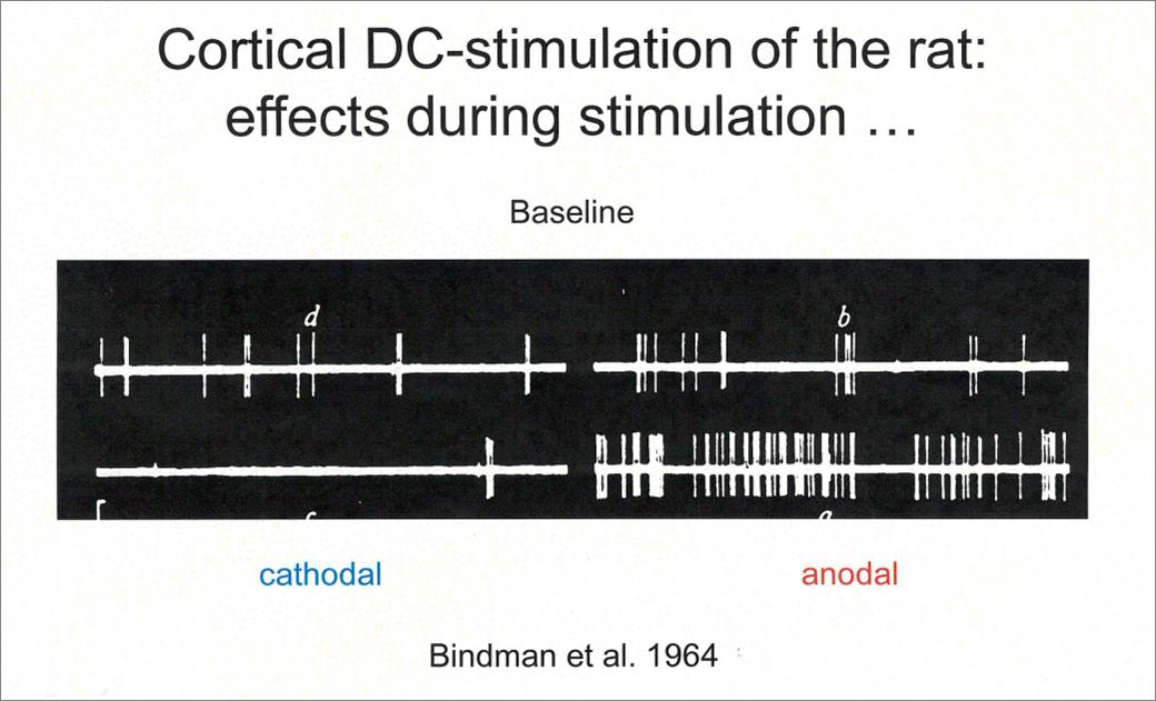 tDCS metoda neuromoduacji