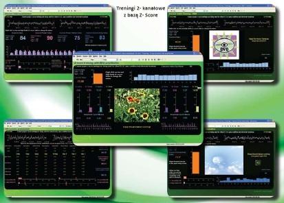 Baza Z-Score wykorzystywana w neuorobrazowaniu EEG