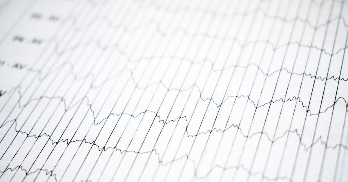 Badanie EEG u dzieci - ocena ryzyka nieprawidłowego rozwoju